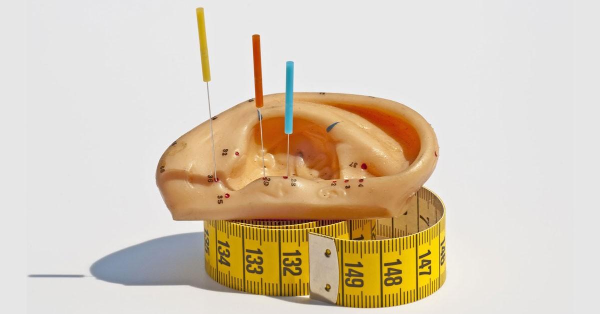 метод фалева иглоукалывание для похудения