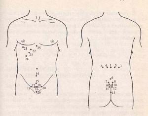 москва центр лечения простатита