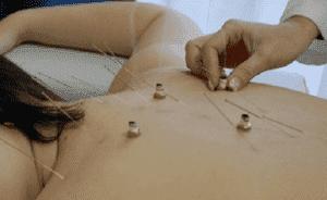 Лечение бронхиальной астмы иглоукалыванием 2
