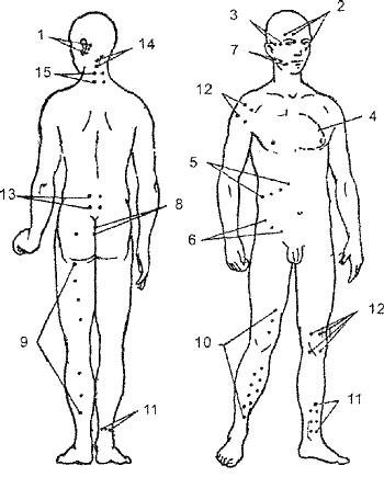Точки постановки пиявок на ноги - схемы присасывания при варикозе ног