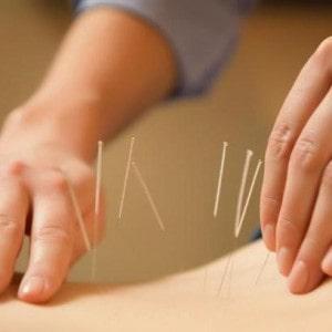 Иглоукалывание в лечении остеохондроза поясничного отдела позвоночника