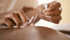 Иглоукалывание при ревматоидном артрите отзывы