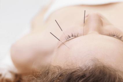 Иглоукалывание при мигрени в Москве, отзывы: лечение головных ...