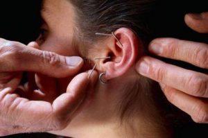 Иглоукалывание при головокружении